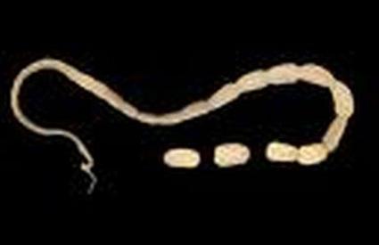 maciji paraziti kod ljudi
